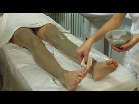 Ginocchia dolori articolari e vene