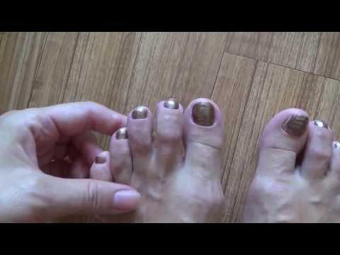 Толстые ногти на ногах что делать