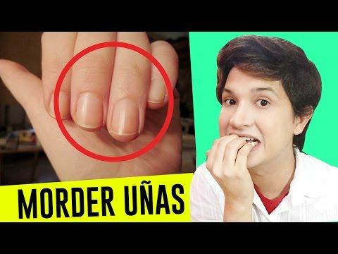 Como se librará esto del hongo sobre las uñas