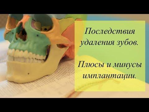 Как влияет удаление зубов на организм. Плюсы и минусы имплантации.