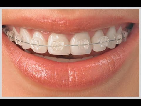 Dental Braces at Best Price in India