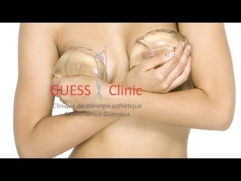 Les médecins qui font la plastique de la poitrine