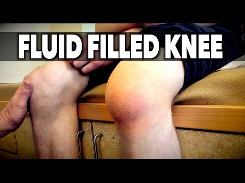 Video FLUID FILLED KNEE! | Dr. Paul