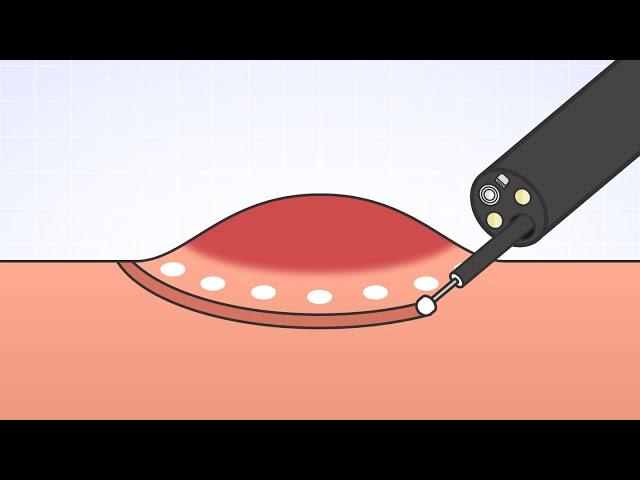 「ESD:内視鏡的粘膜下層剥離(はくり)術」(オリンパス「おなかの健康ドットコム」)
