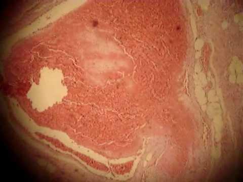 Massaggio di una zona varicosa