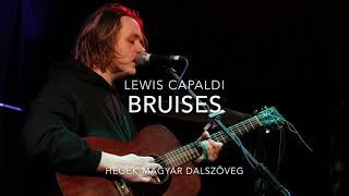 Lewis Capaldi Bruises (Magyar Dalszöveg)