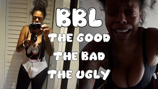 BBL SURGERY ?!? THE GOOD, BAD & THE UGLY | DR MENDIETA MIAMI