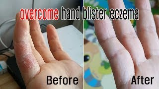 overcome hand blister ezema/dermatitis/How to save the hand blister ezema