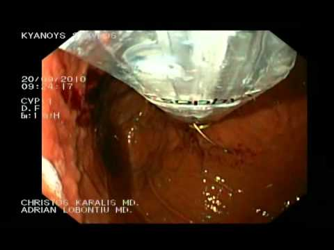 Esophyx - Endoskopowa Fundoplikacja, Cz. 2.
