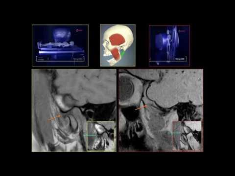 Colonna vertebrale perineurale trattamento cisti s2 di rimedi popolari