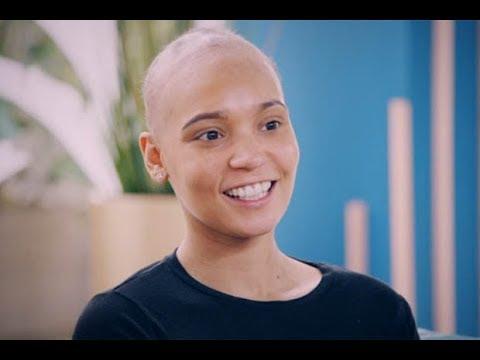 Alopecia areata kababaihan