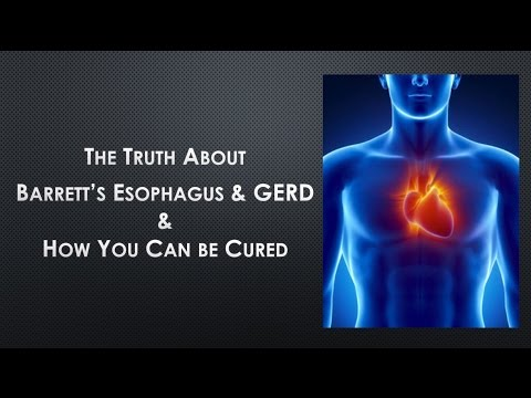 Video How To Cure Barrett's Esophagus - The Truth About Barrett's Esophagus