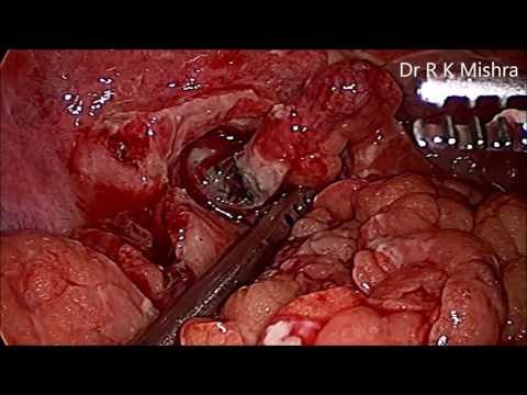 Ruptured Appendix