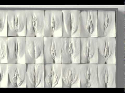 """5 soluţii ca să scapi de mâncărimile vaginale - Sănătate > Ginecologie – bekkolektiv.com"""" title="""""""" style=""""width:300px"""" /><br /> Zona genitala exterioara este numita vulva. Multe conditii pot afecta zona, ducand la o senzatie de arsura in zona vaginala, precum mancarime sau usturime. Senzatia de arsura vaginala poate provoca un disconfort si poate fi cauzata de numeroase lucruri, unele cauze care necesita atentie medicala. Acest articol va examina diferite cauze posibile <b>Banc artrita la vagin</b> senzatia de arsura. Severitatea senzatiei depinde de cauza arderii. Arsura vaginala poate incepe instantaneu sau treptat si poate fi constanta sau simtita doar la anumite momente de exemplu, in timpul exercitiilor fizice. Mai jos sunt cauze ale senzatie de arsura in zona vaginala si sfaturi privind modul de abordare a problemei:. Multe lucruri pot provoca iritarea vaginului, care este o cauza foarte comuna a <em>Banc artrita la vagin</em> senzatii de arsura in zona vaginala. Produsele, cum ar fi hartie igienica, servetele de curatat sau sapunuri, pot provoca iritatii daca sunt aplicate pe zona vaginala. Dusul poate provoca iritarea <em>Banc artrita la vagin</em> datorita substantelor chimice dure implicate in proces.</p> <p> Utilizarea unui dus poate, de asemenea, distruge bacteriile sanatoase din vagin, ceea ce poate duce la mai multe infectii si complicatii. Daca simtiti nevoia de dus, incercati sa creati o versiune realizata in casa, utilizand ingrediente organice.<br /> Zona genitala exterioara este numita vulva. Multe conditii pot afecta zona, ducand la o senzatie de arsura in zona vaginala, precum mancarime sau usturime. Senzatia de arsura vaginala poate provoca un disconfort si poate fi cauzata de numeroase lucruri, unele cauze care necesita atentie medicala. Acest <em>Banc artrita la vagin</em> va examina diferite cauze posibile pentru senzatia de arsura. Severitatea senzatiei depinde de cauza arderii. Arsura vaginala poate incepe instantaneu sau treptat si poate """