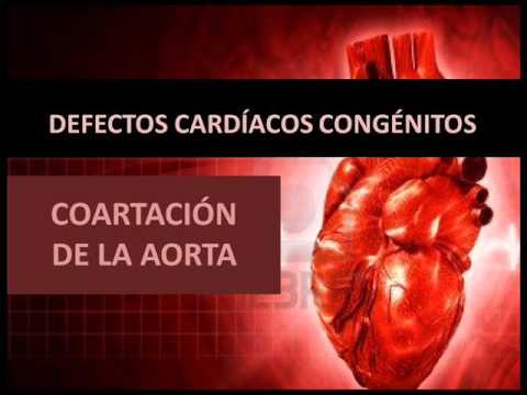Hipertensión arterial uterina durante el embarazo