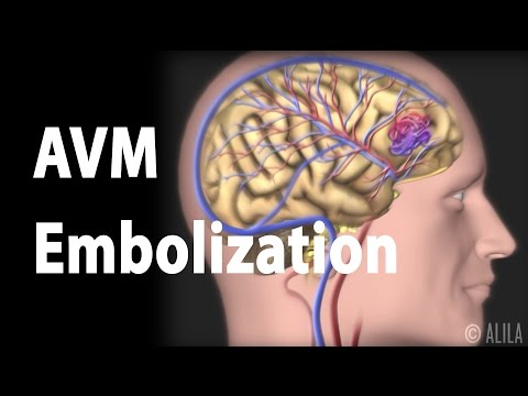 Arteriovenous malformation (AVM) and Embolization Treatment