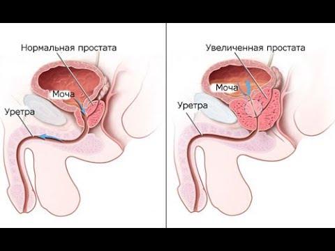 Заболевание предстательной железы код мкб 10