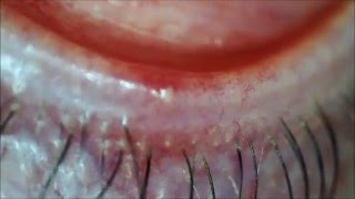 Pus filled Pimple INSIDE the eyelid!