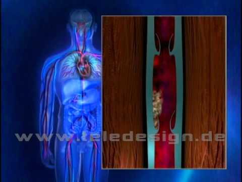 Warikosnaja das Ekzem des Unterschenkels die Behandlung