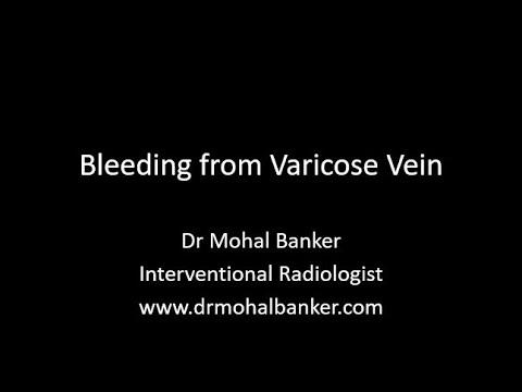 Geluri pentru tratamentul varicozei varicoase pe picioare