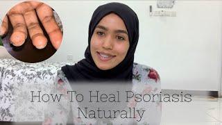 How to Heal Nail Psoriasis | How to heal autoimmune disease