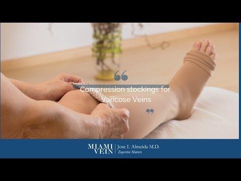 Simptome de picior varicoase și tratament