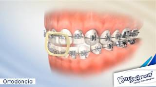 """Corrección de mordida y espacios dentales """"Ortodoncia"""""""
