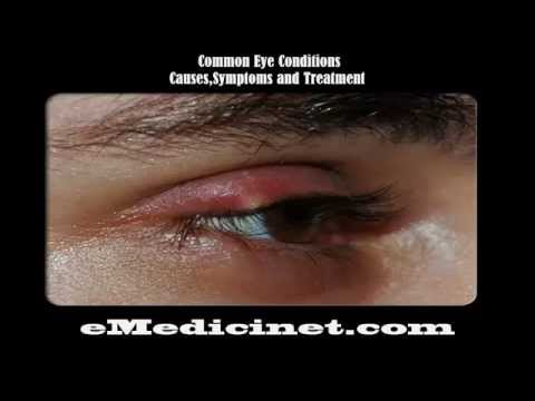 Video Common Eye Diseases and Conditions causes,symptoms,diagnosis and treatment part 1  480x360