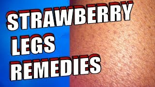 How To Get Rid of Strawberry Legs –  The Best Home Remedies