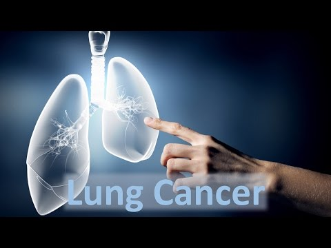 Video Lung Cancer- Causes and Solutions