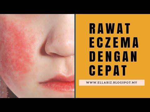 Eczema di exogenous questo