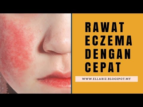 Biotin ed eczema