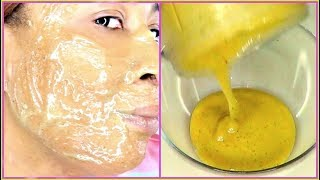 LOOK AT MY SKIN!!! GET RID OF WRINKLES, FINE LINES SAGGING SKIN, CLEAR SPOTLESS SKIN |Khichi Beauty