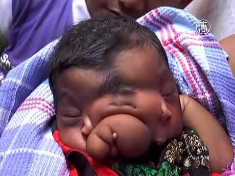 Может ли ребенок заразиться гепатитом с от родственников