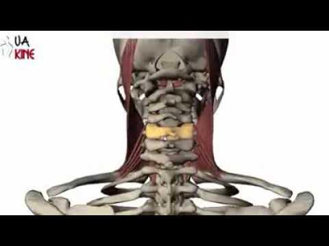 Osteocondrosis artritis artrosis