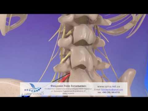 Боль в спине и сколиоз