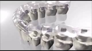 Lingual braces procedure Orthosmile Antelias Lebanon - Dr Joe Kharma