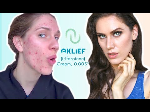 FIRST NEW ACNE MED IN 20 YEARS  - Aklef - Trifarotene Cream, 0.005 Review & Impressions