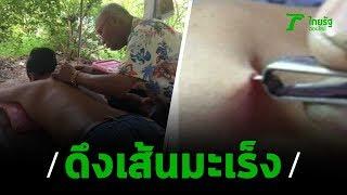 """ที่จังหวัดนครนายก เจ้าหน้าตำรวจ และสาธารณสุข บุกตรวจบ้าน """"หมอจวบ"""" ที่ใช้แหนบและเข็มเย็บผ้า ดึงเส้นมะเร็ง รักษาโรคร้าย แต่บ้านถูกปิดเงีบ      ติดตามเราได้ที่  ThairathOnline : https://www.thairath.co.th ThairathTV : https://www.thairath.co.th/tv  Facebook : https://www.facebook.com/thairath Facebook : https://www.facebook.com/thairathtv  Twitter : https://twitter.com/Thairath_News Twitter : https://twitter.com/Thairath_TV  Instagram : https://www.instagram.com/thairath Instagram : https://www.instagram.com/thairathtv  Youtube Channel : https://bit.ly/1P7vV7z"""