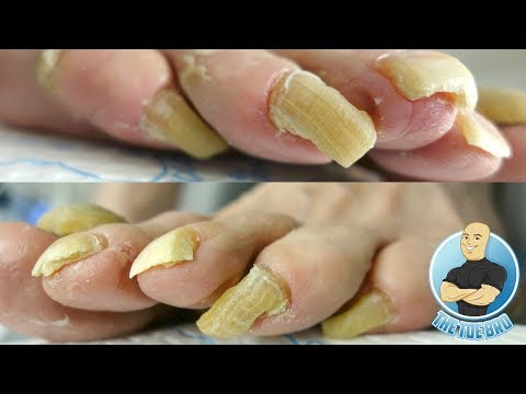 Exhaust nail treatment
