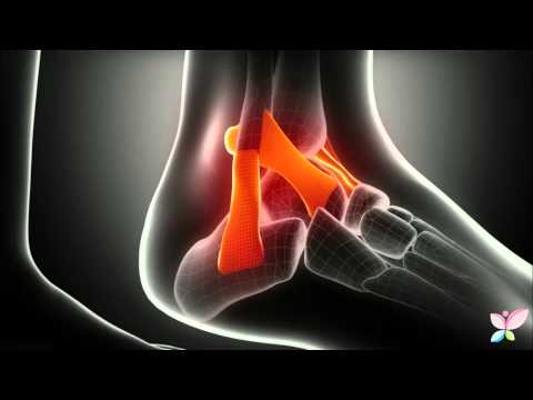 Yoga en la osteocondrosis Frolov