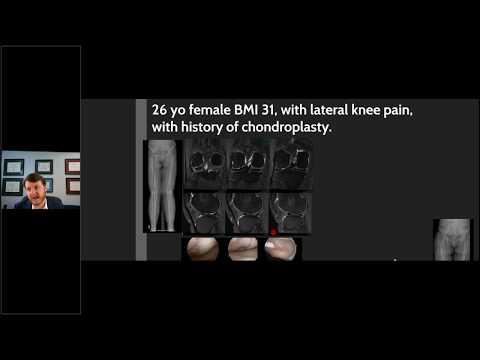 Rottweiler arthritis hogyan lehet kezelni