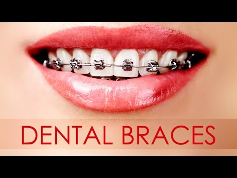 Different Types of Dental Braces for Your Teeth