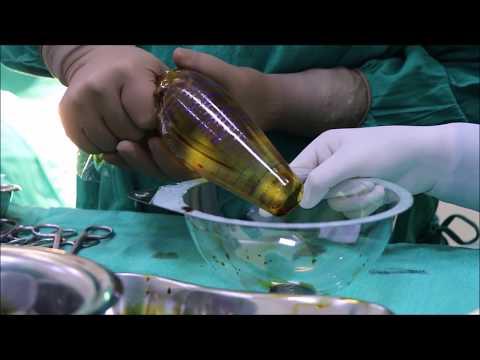 Dibdib pagpapaluwang cream at ang presyo