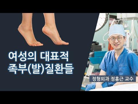 여성들의 대표적 족부 질환들(비온뒤 방송출연)