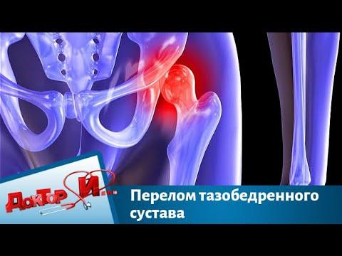 Перелом тазобедренного сустава   Доктор И