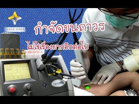 Phytogathering n1 โรคสะเก็ดเงิน