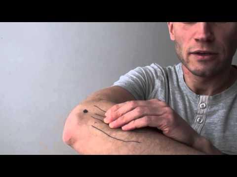 Jak zmniejszyć swędzenie na żylaki