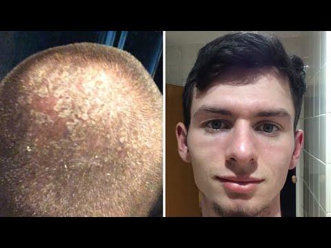 2 years no shampoo results