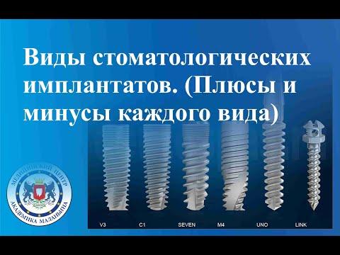 Виды стоматологических имплантатов.  Плюсы и минусы каждого вида